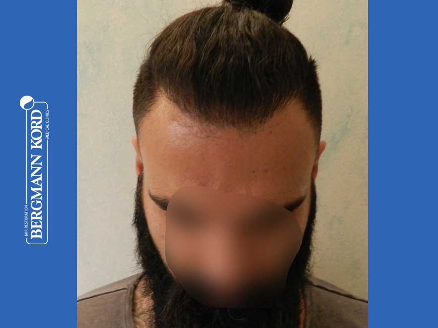 hair-transplantation-bergmann-kord-results-men-64051PG-after-front-001