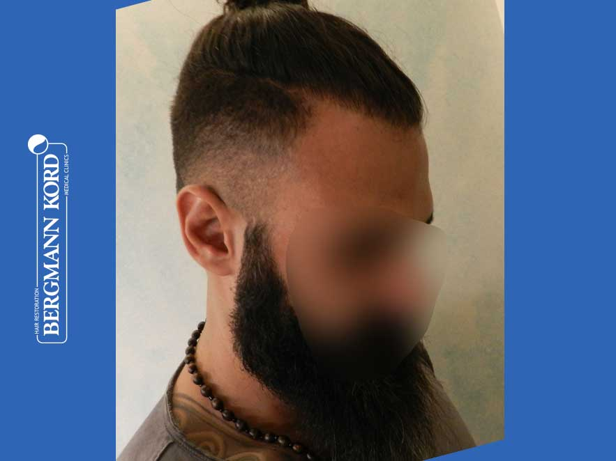 hair-transplantation-bergmann-kord-results-men-64051PG-after-right-001