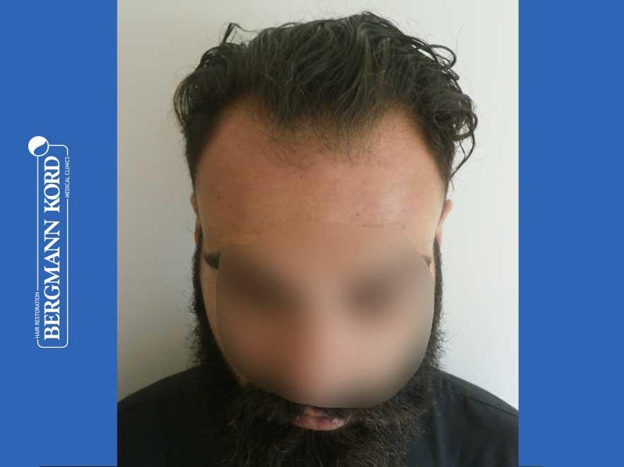 hair-transplantation-bergmann-kord-results-men-64051PG-before-front-001