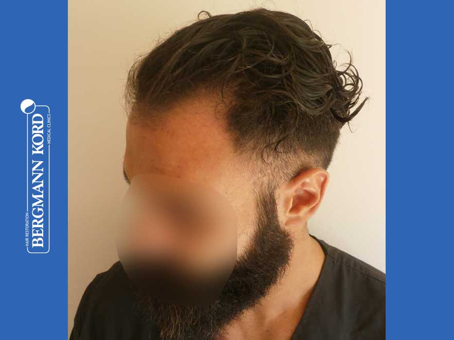 hair-transplantation-bergmann-kord-results-men-64051PG-before-left-001