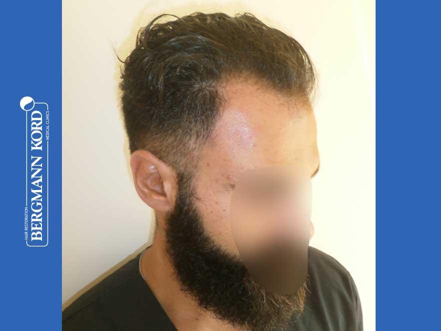 hair-transplantation-bergmann-kord-results-men-64051PG-before-right-001