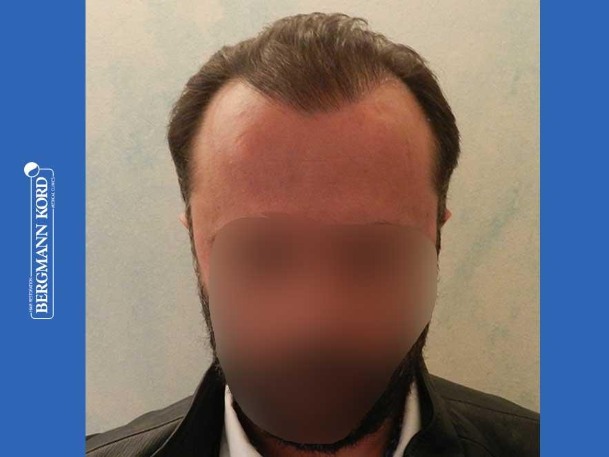 hair-transplantation-bergmann-kord-results-men-64053PG-after-front-001