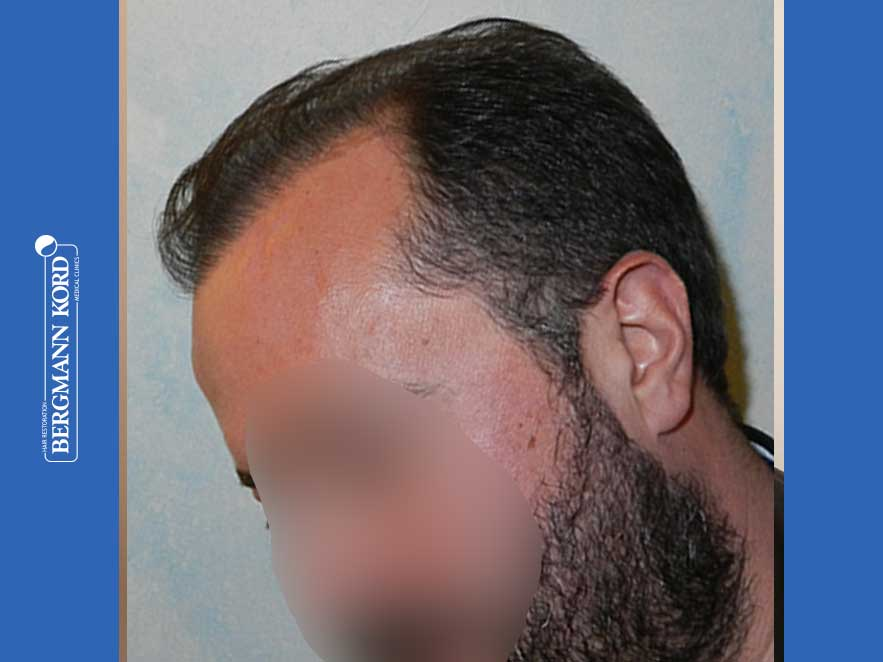 hair-transplantation-bergmann-kord-results-men-64053PG-after-left-001