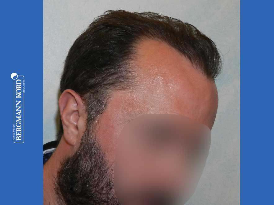 hair-transplantation-bergmann-kord-results-men-64053PG-after-right-001