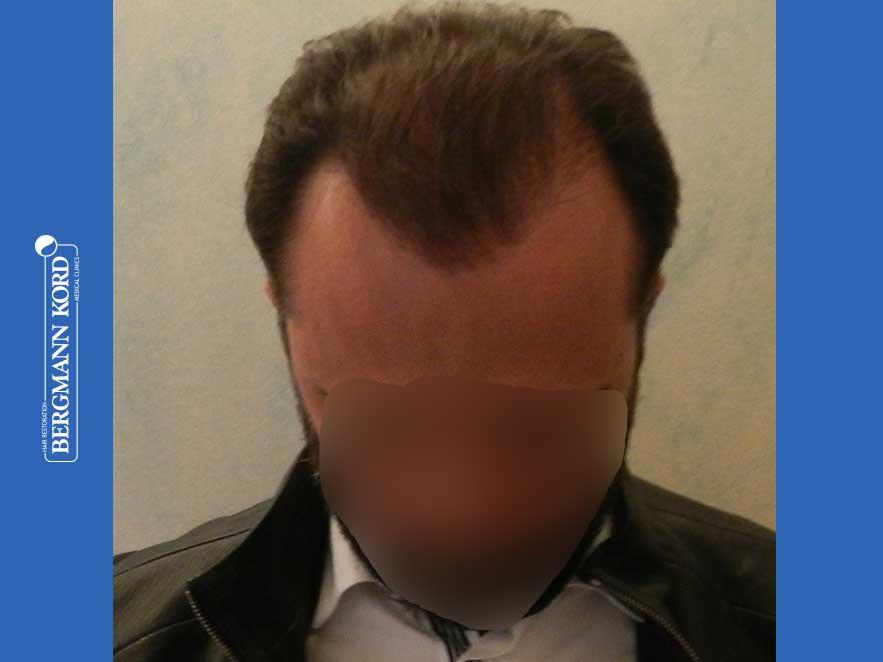 hair-transplantation-bergmann-kord-results-men-64053PG-after-top-001