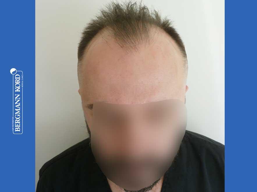 hair-transplantation-bergmann-kord-results-men-64053PG-before-front-001