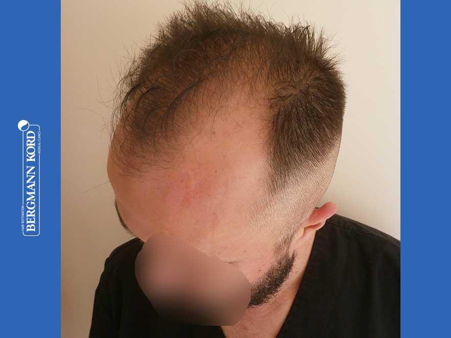 hair-transplantation-bergmann-kord-results-men-64053PG-before-left-001