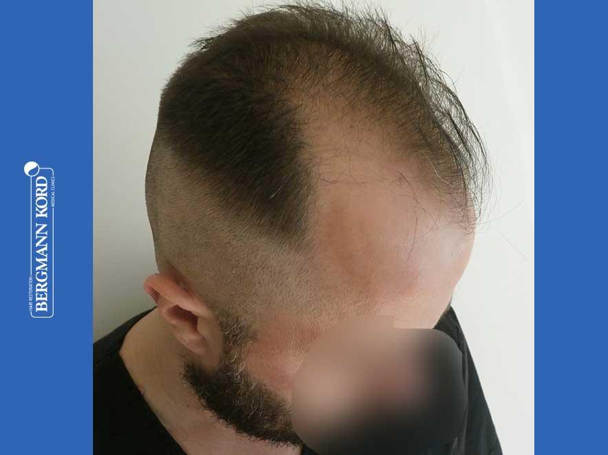 hair-transplantation-bergmann-kord-results-men-64053PG-before-right-001