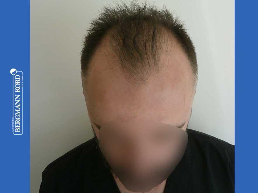 hair-transplantation-bergmann-kord-results-men-64053PG-before-top-001