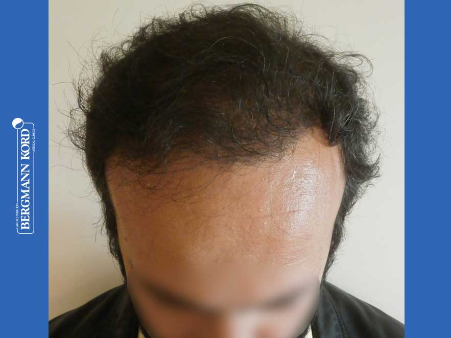 hair-transplantation-bergmann-kord-results-men-66018-after-front-001