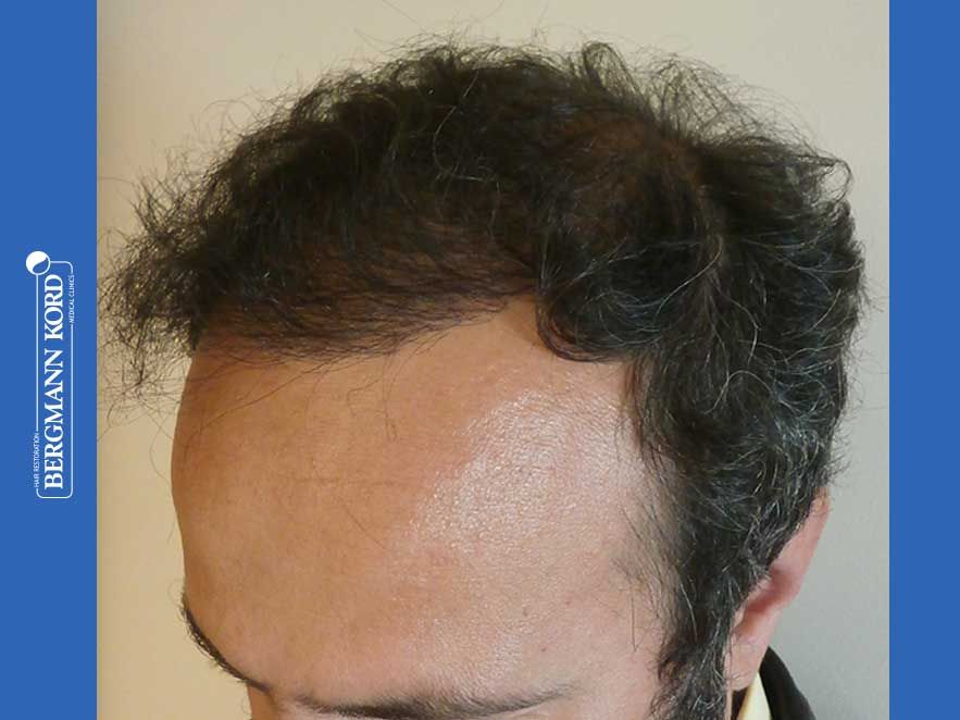 hair-transplantation-bergmann-kord-results-men-66018-after-left-001