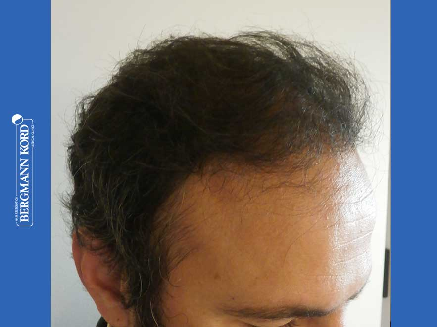 hair-transplantation-bergmann-kord-results-men-66018-after-right-001