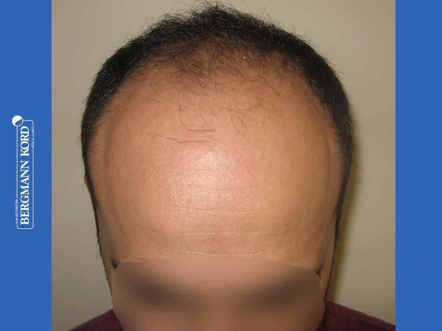 hair-transplantation-bergmann-kord-results-men-66018-before-front-001