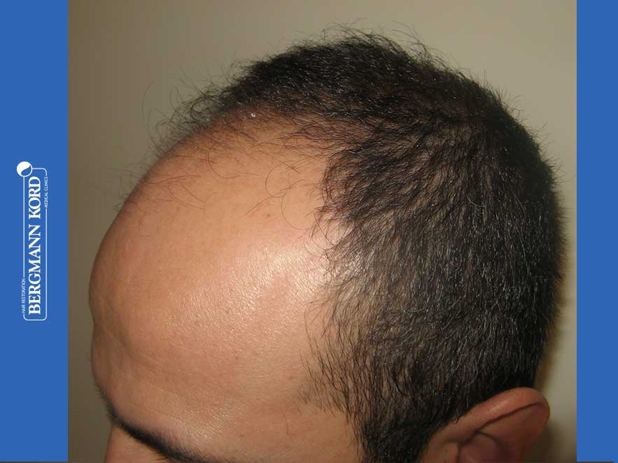 hair-transplantation-bergmann-kord-results-men-66018-before-left-001