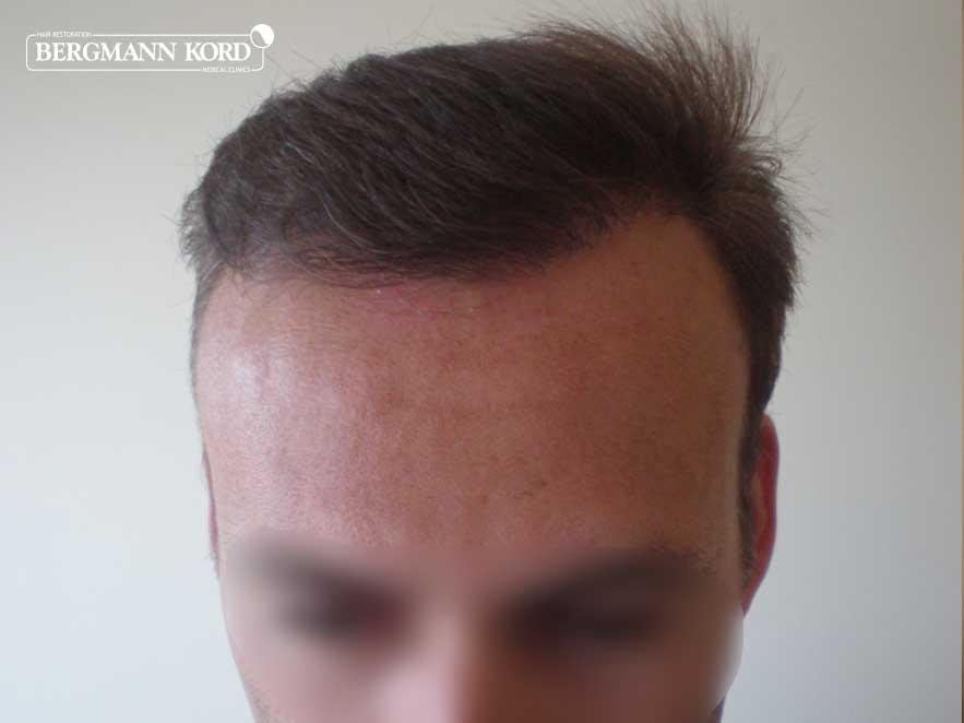 hair-transplantation-bergmann-kord-results-men-66029PG-after-front-001