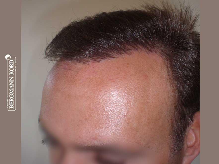 hair-transplantation-bergmann-kord-results-men-66029PG-after-left-001
