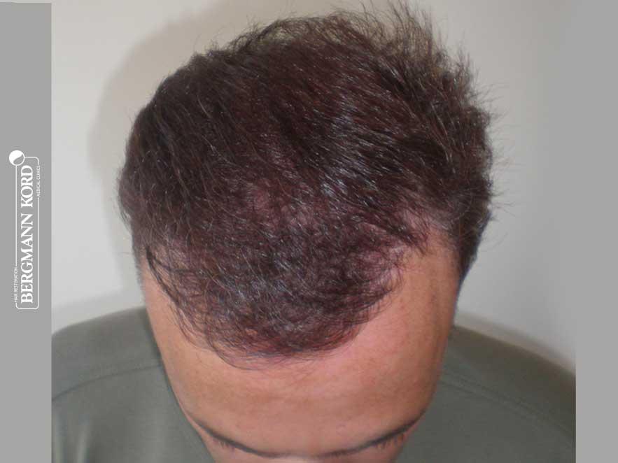 hair-transplantation-bergmann-kord-results-men-66029PG-after-top-001