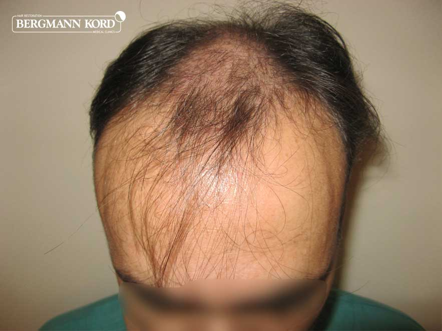 hair-transplantation-bergmann-kord-results-men-66029PG-before-front-001