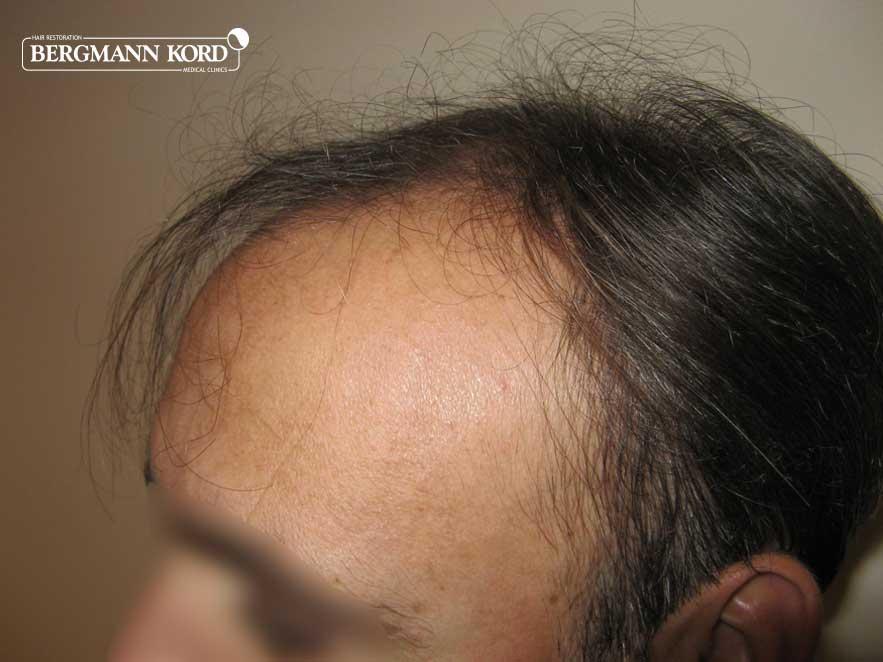 hair-transplantation-bergmann-kord-results-men-66029PG-before-left-001