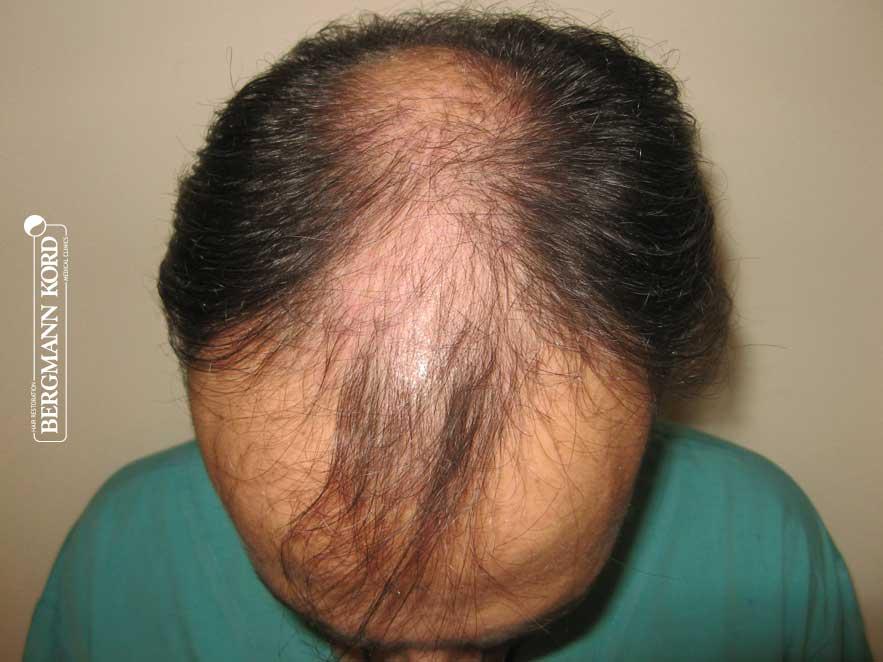 hair-transplantation-bergmann-kord-results-men-66029PG-before-top-001