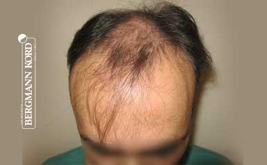 hair-transplantation-bergmann-kord-results-men-66029PG-thumb-001