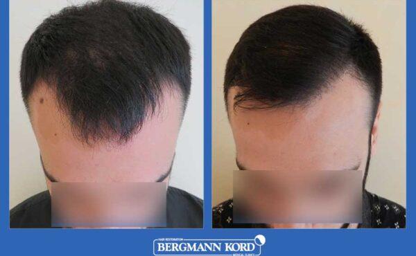 hair-transplantation-bergmann-kord-results-men-69021PG-before-after-001