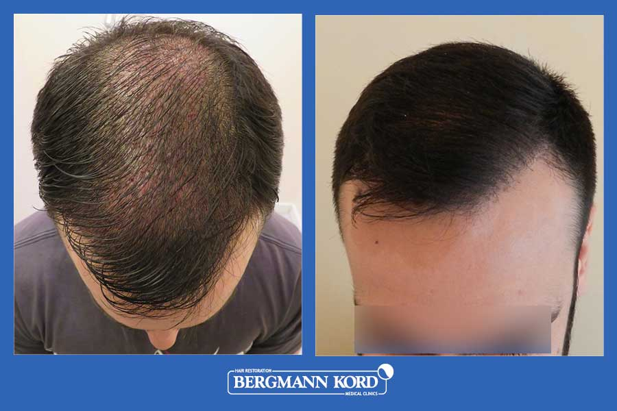 hair-transplantation-bergmann-kord-results-men-69021PG-before-after-002