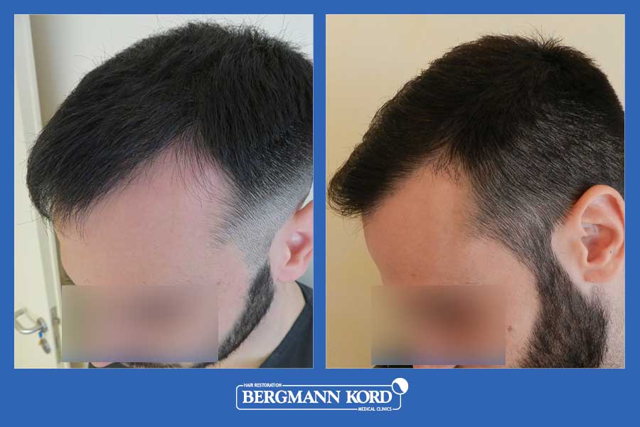 hair-transplantation-bergmann-kord-results-men-69021PG-before-after-003