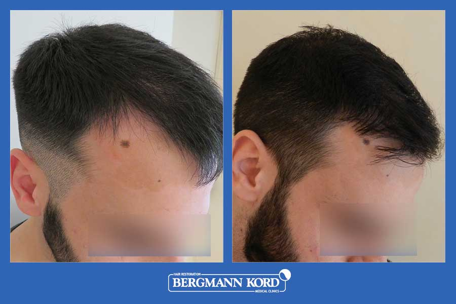 hair-transplantation-bergmann-kord-results-men-69021PG-before-after-004