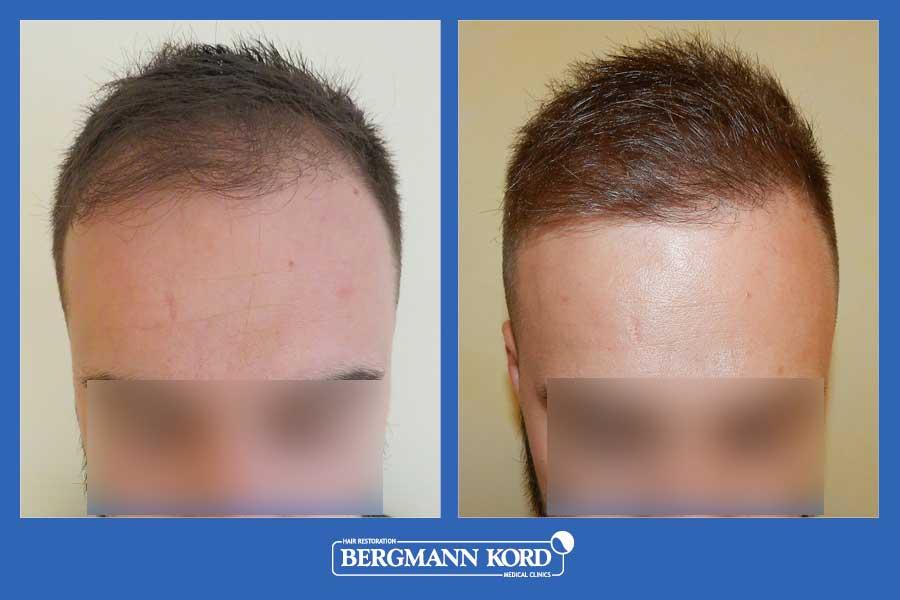 hair-transplantation-bergmann-kord-results-men-69077PG-before-after-001