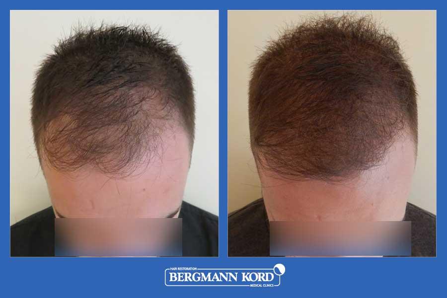 hair-transplantation-bergmann-kord-results-men-69077PG-before-after-002