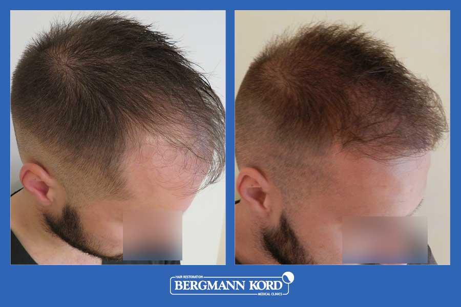 hair-transplantation-bergmann-kord-results-men-69077PG-before-after-003