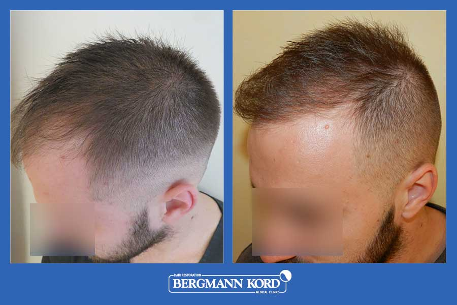 hair-transplantation-bergmann-kord-results-men-69077PG-before-after-004