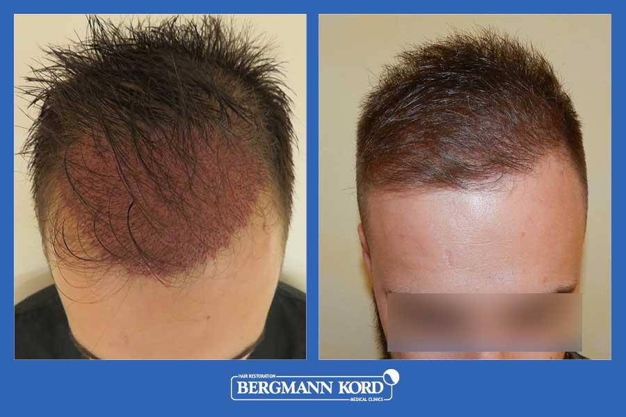 hair-transplantation-bergmann-kord-results-men-69077PG-before-after-005