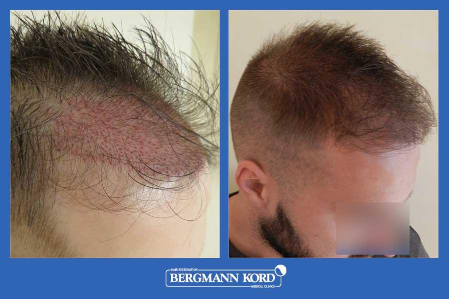 hair-transplantation-bergmann-kord-results-men-69077PG-before-after-006