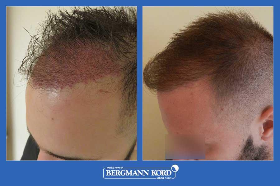 hair-transplantation-bergmann-kord-results-men-69077PG-before-after-007
