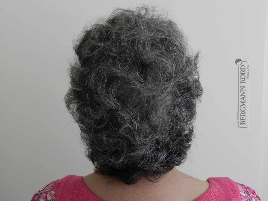 hair-transplantation-bergmann-kord-results-woman-46013PG-after-back-001