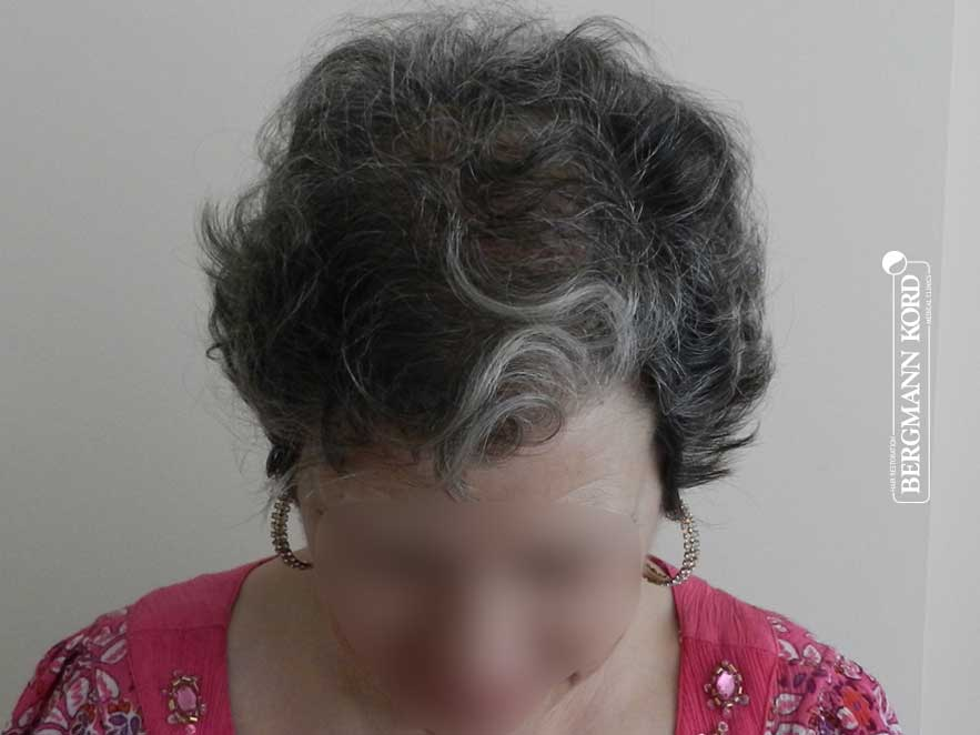 hair-transplantation-bergmann-kord-results-woman-46013PG-after-top-001