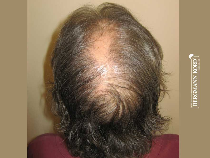 hair-transplantation-bergmann-kord-results-woman-46013PG-before-back-001