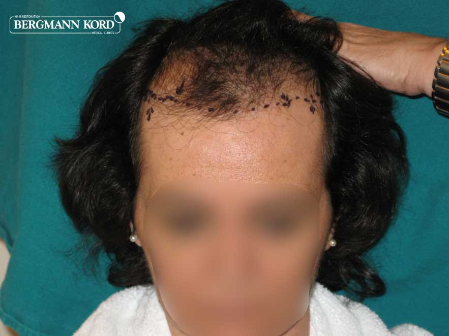 hair-transplantation-bergmann-kord-results-woman-49038PG-before-front-001