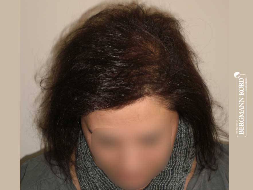hair-transplantation-bergmann-kord-results-woman-58041PG-after-top-001