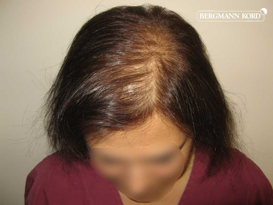 hair-transplantation-bergmann-kord-results-woman-58041PG-before-top-001