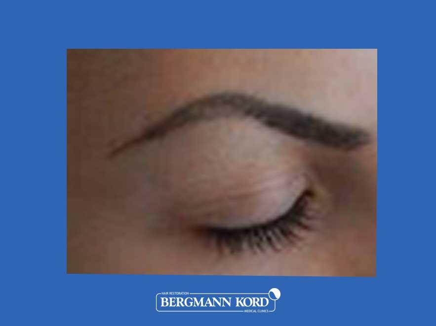 haarimplantation-bergmann-kord-ergebnisse-frau-45040PG-vor-zoom-links-001