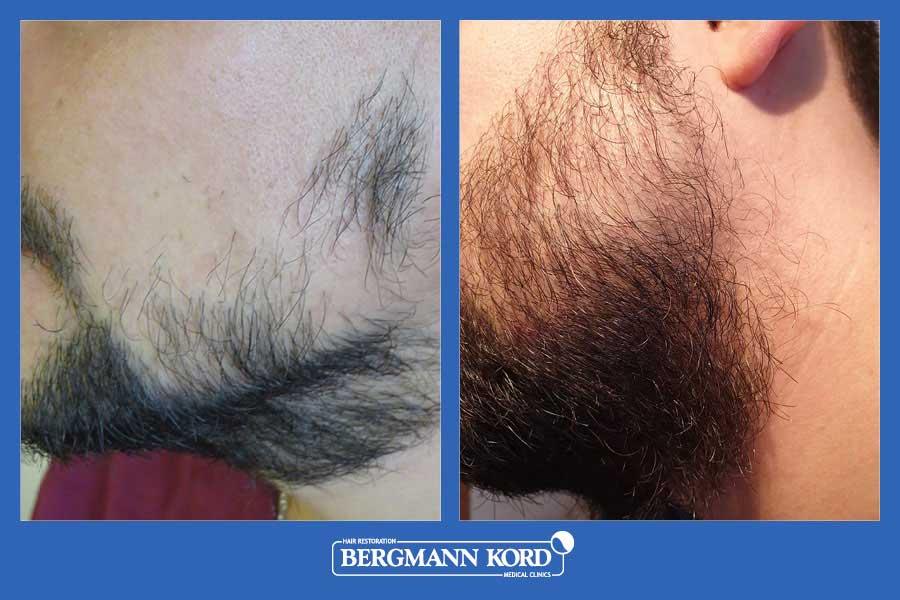 haarimplantation-bergmann-kord-ergebnisse-männer-17561PG-vorher-nachher-003