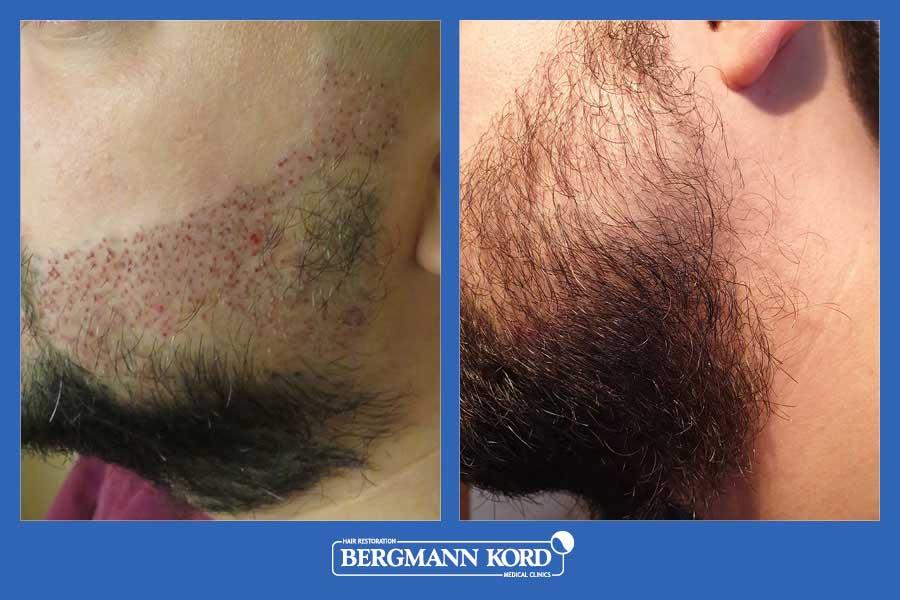 haarimplantation-bergmann-kord-ergebnisse-männer-17561PG-vorher-nachher-004