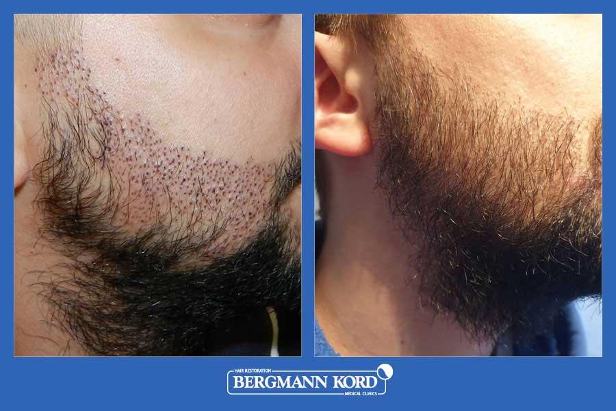 haarimplantation-bergmann-kord-ergebnisse-männer-17561PG-vorher-nachher-005