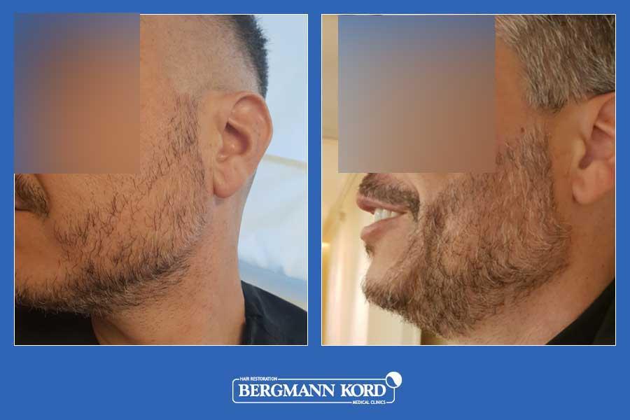 haarimplantation-bergmann-kord-ergebnisse-männer-45045PG-vorher-nachher-002