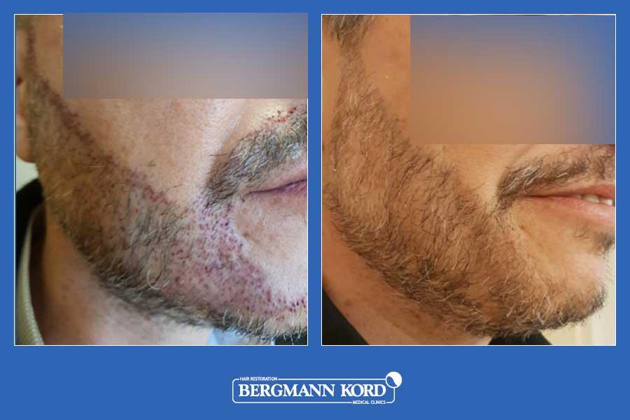 haarimplantation-bergmann-kord-ergebnisse-männer-45045PG-vorher-nachher-003