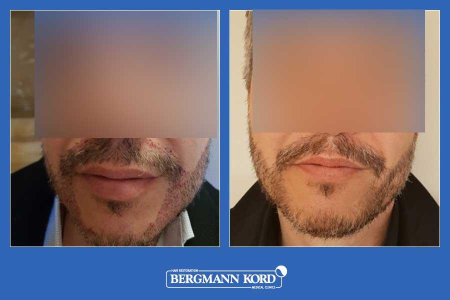 haarimplantation-bergmann-kord-ergebnisse-männer-45045PG-vorher-nachher-004