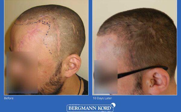 haarimplantation-bergmann-kord-ergebnisse-männer-45100PG-vorher-nachher-001